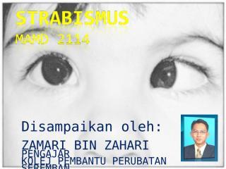 mamd 2114 strabismus.ppt